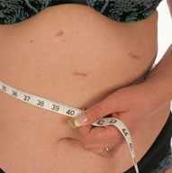 Bypass Surgery For Weight Loss